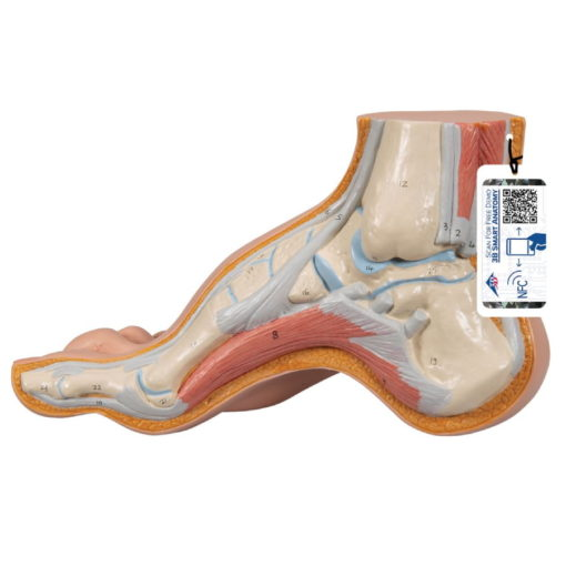 Arched Foot Model